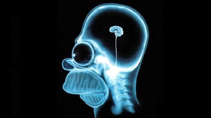 Le cerveau d'Homer Simpson aux rayons X!
