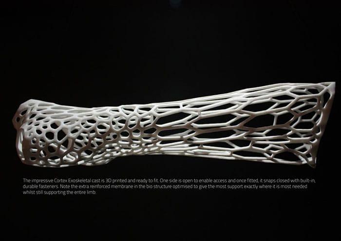 cortex-un-platre-revolutionnaire